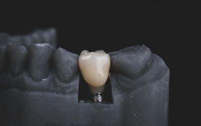 Benefits Of Implants Over Dentures