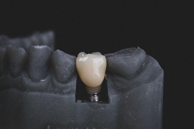 Dental Implants London