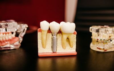 Implants Vs Traditional Teeth Replacements